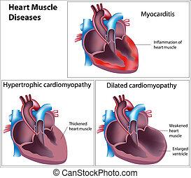 betegségek, közül, szív, izom, eps8