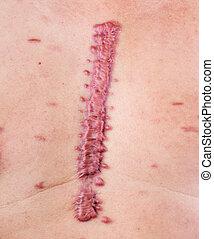 hypertrophic scar - big swell cicatrix - hypertrophic scar