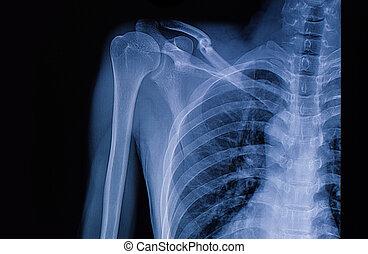 bild, links, schlüsselbeinbruch, röntgenaufnahme