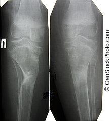 bild, senken, äußerste, nach, knochenbrüche, röntgenaufnahme