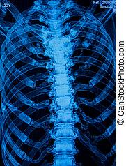 bild, under3d, brust-, rückgrat, röntgenbilder