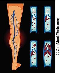 bilda klumpar, blod, mänskligt ben
