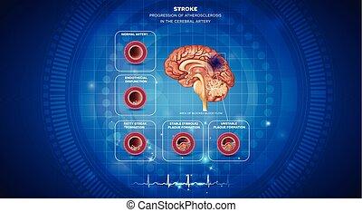 bilda klumpar, hjärna, formande, blod, slag