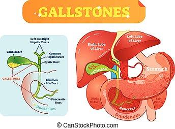 bilis, abdominal, cálculos biliares, sección, cruz, ilustración, diagrama anatómico, cavidad, conductos, vector, vesícula biliar, duodenum.