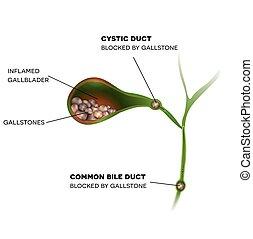 bilis, cálculos biliares, conducto, inflamado, conducto, común, gallbladder., vesícula biliar, cístico