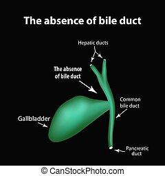 bilis, infographics., ilustración, duct., ausencia, vector, gallbladder., patología, cholecystitis., estructura