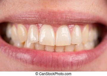 bite., dental, mujeres, jaw., sonrisa