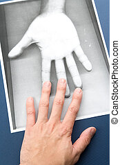 Photocopy of hand - Black and white Photocopy of hand,...