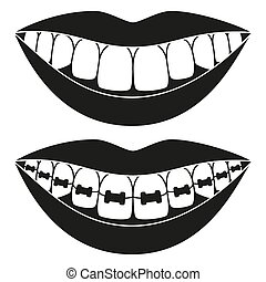 Black and white teeth aligning elements silhouette. Before...