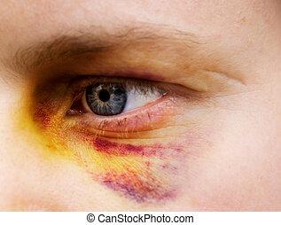 Black Eye Detail - Black eye detail of a woman - purple...