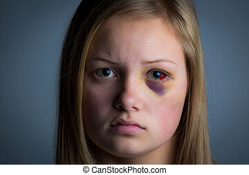 Black eye girl