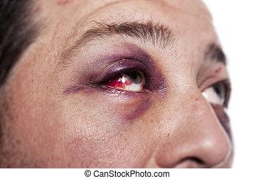 what causes black eyes without injury