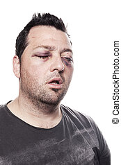 black eye injury accident violence isolated - eye injury,...