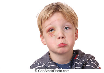 Black eye - Portrait of a young boy with black eye on white ...