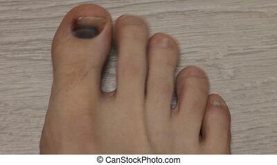 black fingernail, nail trauma, male leg, close-up hematoma