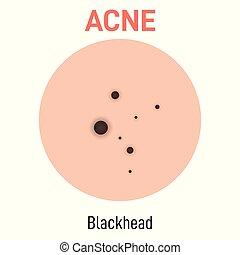 blackhead, acné, type, peau