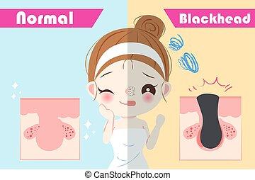 blackhead, femme, problème, beauté