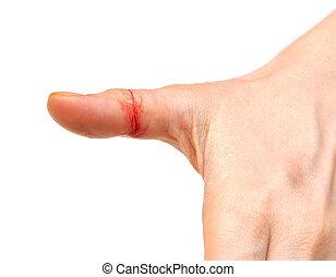 bleeding wound on white