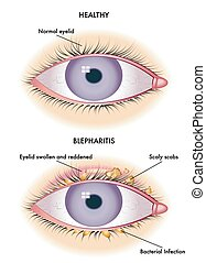 blepharitis - medical illustration of the symptoms of...