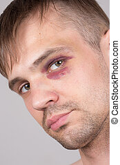 blessé, eye., closeup., homme