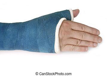 bleu, cassé, fibre verre, moule, poignet, bras