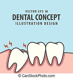bleu, dentaire, a influé, intérieur, gencive, dent, arrière-plan., vecteur, illustration, sous, concept., inflammation