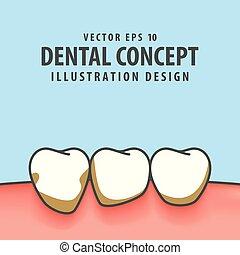 bleu, dentaire, illustration, arrière-plan., vecteur, periodontitis, concept.