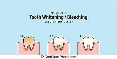 bleu, whitening-bleaching, dentaire, étape, gencive, dent, arrière-plan., unique, vecteur, illustration, humain, concept.