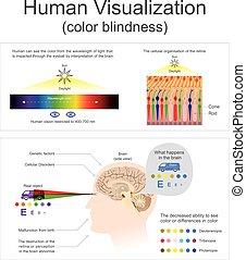 blindness., 人間, 視覚化, 色