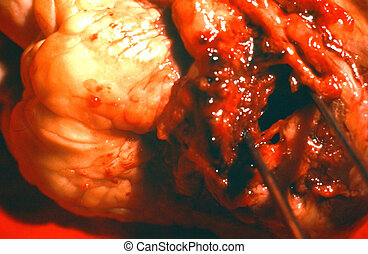 Blocked artery.