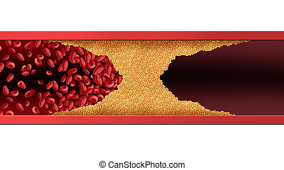 Blocked Human Artery - Blocked blood vessel human artery...