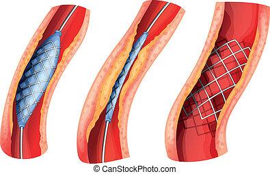 blockerat, stent, använd, öppna, pulsåder
