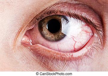 blod, kapillär, humanen synar