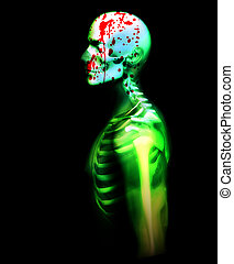 Blood And Bone - An image of an x rayed skeleton covered in...