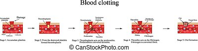 Blood clotting. Infographics. Vector illustration