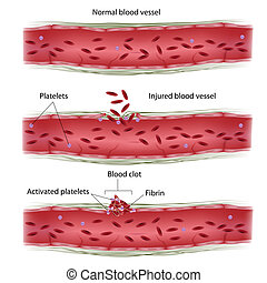 Blood clotting process, eps8