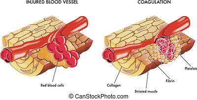 Blood coagulation - medical illustration of the process of...