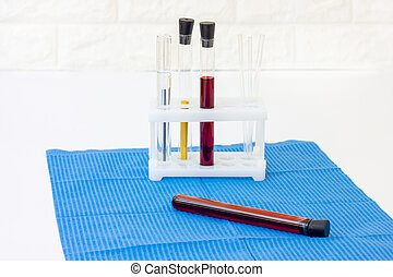 Blood in test tubes. Laboratory for taking blood tests. Coronovirus test