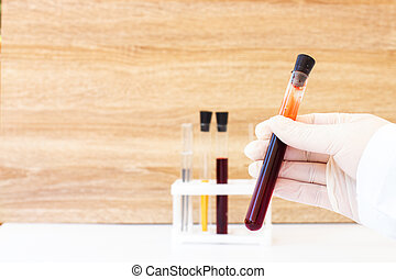 Blood in test tubes. Laboratory for taking blood tests. Coronovirus test