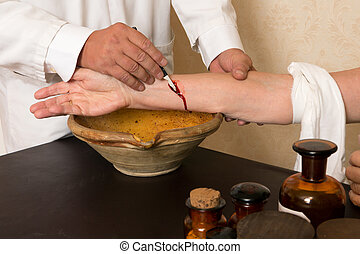 Blood letting or bleeding - Reenactment of the antique...