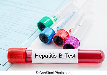 Blood sample for hepatitis B virus (HBV) testingl on request form screening test.