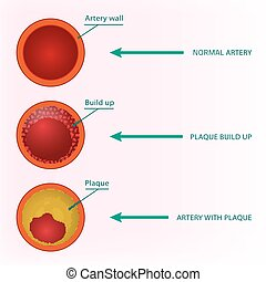 Blood Vector Image - Beautiful vector illustration of blood...