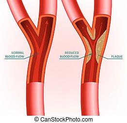 Blood Vein Image - Beautiful vector illustration of blood ...