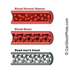 Blood vessel of  healthy person with normal leukocytes. Bloody Artery Boxer. Blood cells red boxing gloves. Dead man  blood- lymph cells skull. Anatomical human blood vein