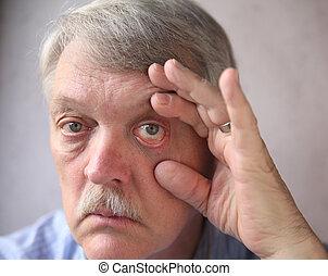 bloodshot eyes in a senior man