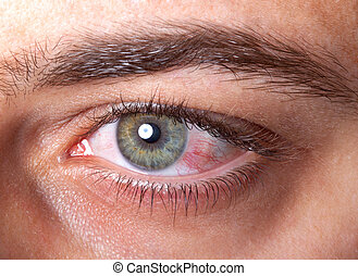 bloodshot, olho, vermelho, irritada