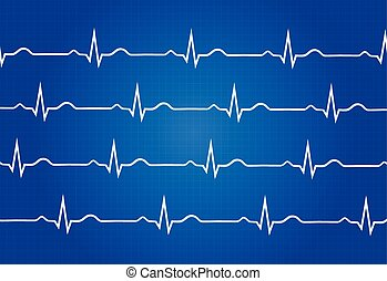 Normal Electrocardiogram Graphic