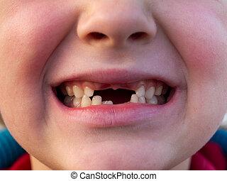 boca, de, criança, com, mudança, dentes