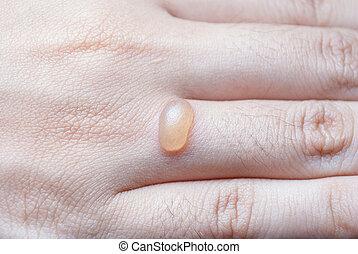 bolha, dedo, human