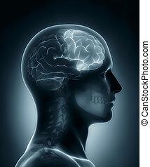 boltec, čelní, lékařský x- vyzařovat, prohlížet